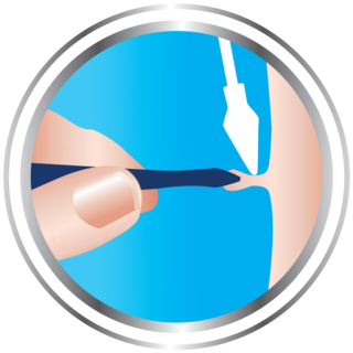 Skin tag remover step 4 - How the skin tag is frozen using Cryotag's precision-tip applicator and a pair of tweezers